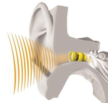 Lyric in ear