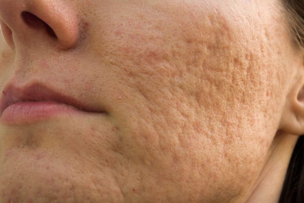 Rollinglittekens na acne