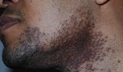 Ingegroeide Baardharen Pseudofolliculitis Barbae