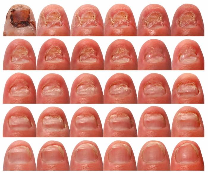 Uitgroei van een normale nagel in een half jaar onder behandeling met systemische antimycotica (klik op foto voor vergroting)