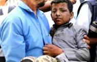 यमनमा बालबालिका चढेको बसमाथि भएको आक्रमणमा, २९ को मृत्यु, ३० घाइते