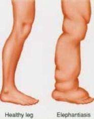 Image result for elephantiasis