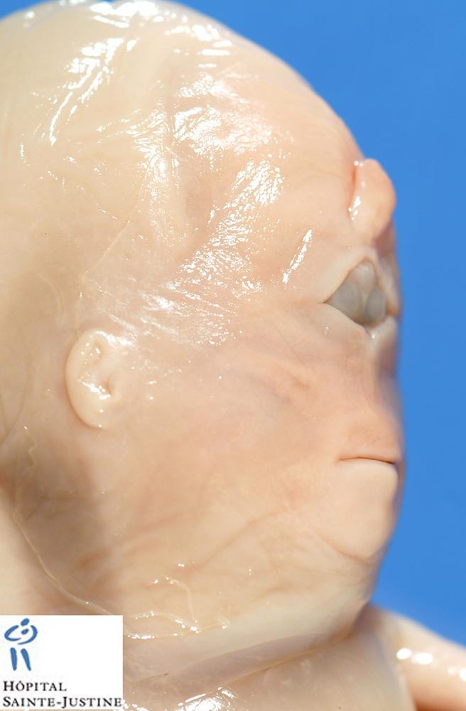 Cyclopia Humpath Com Human Pathology