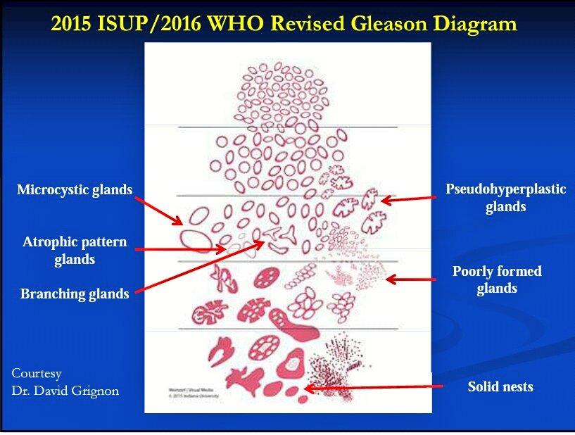 Gleason Pattern 4 Humpath Com Human Pathology