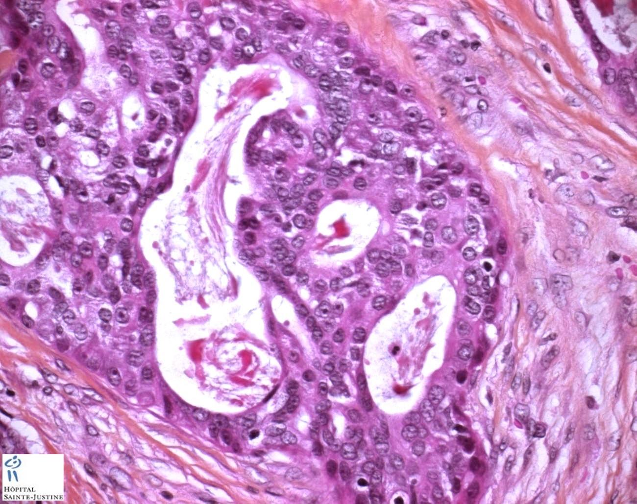 Gland Cell Parotid Salivary