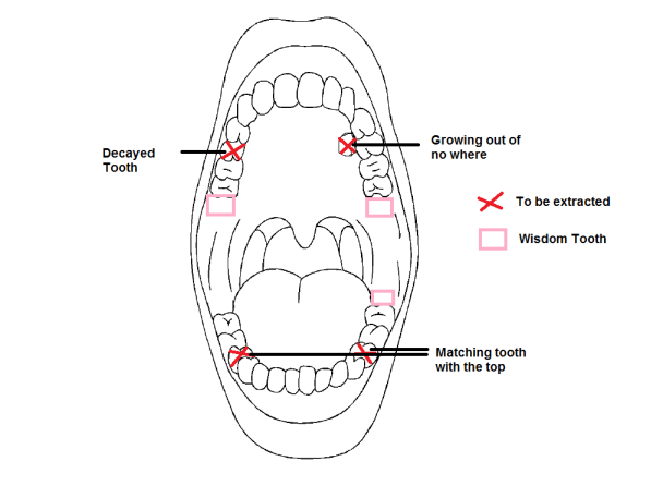 Diagram of my teeth
