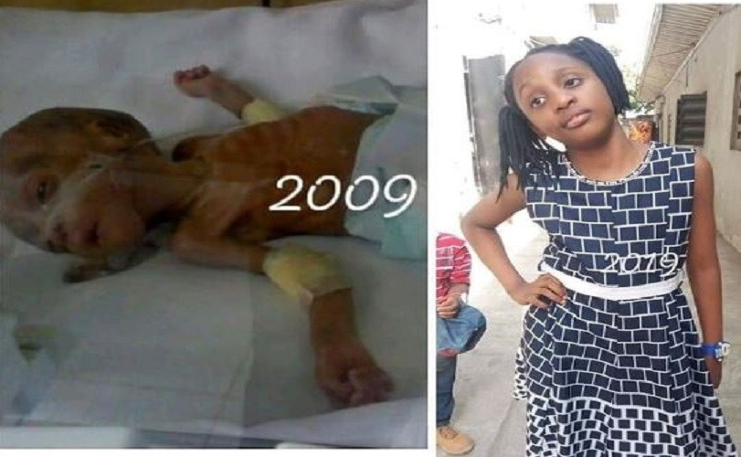 See The Face Of The Little Girl Who Won The Viral #10YearsChallenge