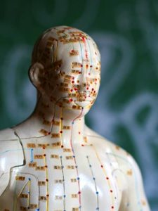 Acupuncture Basingstoke Statue