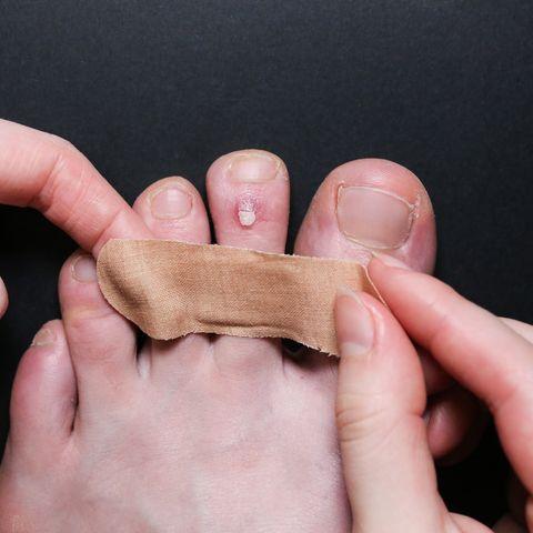 كل ما تريد أن تعرفه عن فقاعات القدمين - جيب صغير من السوائل يتشكل في منطقة من الجسم - حرق في الجلد أو إصابة بالفطريات والبكتيريا