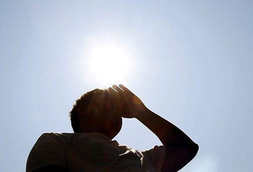 الإنهاك الحراري - ارتفاع درجة حرارة الجسم - أشد أنواع الأمراض المرتبطة بالحرارة خطورة - التعرض لدرجات حرارة مرتفعة ورطوبة مرتفعة وشرب كميات قليلة من السوائل