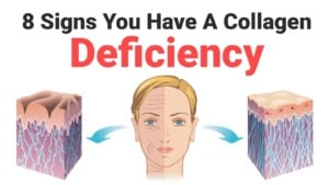 8-Signs-You-Have-A-Collagen-Deficiency-1-300x169