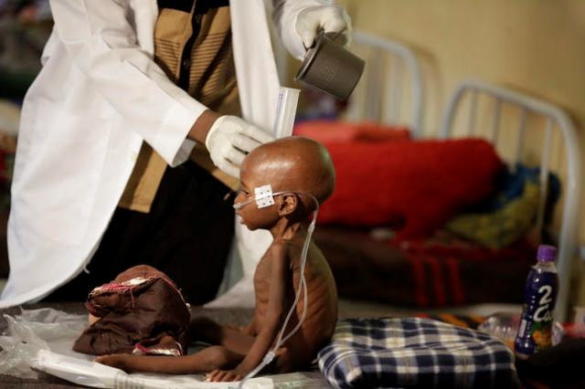 A malnourished child receives heath care at a feeding center run by Doctors Without Borders in Maiduguri Nigeria, Monday Aug. 29, 2016. Children who escaped Boko Haram's Islamic insurgency now are dying of starvation in refugee camps in northeastern Nigeria's largest city as the government investigates the theft of food aid by officials. (AP Photo/Sunday Alamba)