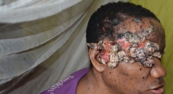 UNDERCOVER INVESTIGATION: Cancer is the disease, Nigeria's health system is the killer