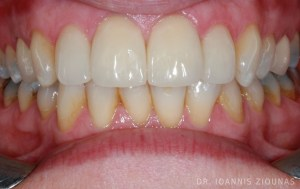 PORCELAIN VENEERS-after2_site