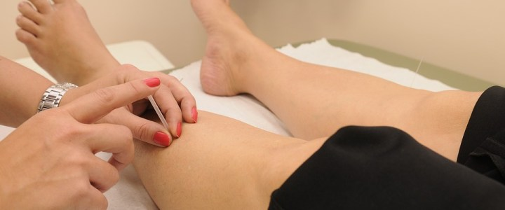 Benefits Of Acupuncture Treatment You Should Try