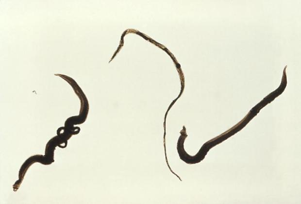 Schistosoma_mansoni_trematodes