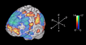 This part of the brain is the source of improvisation