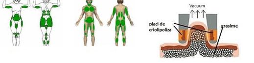 ce inseamna criolipoliza