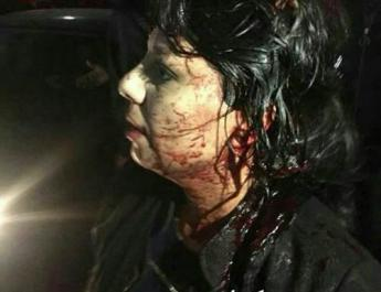 ifmat - Brutal Iranian regime beats female protesters