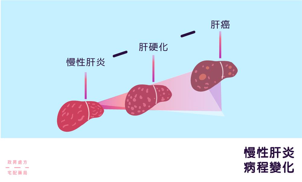 慢性肝炎的病程變化