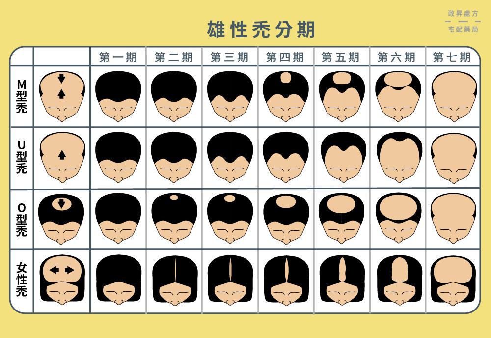 四種禿頭類型的髮量變化