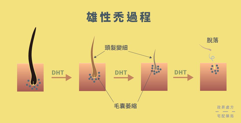 DHT 的致病過程