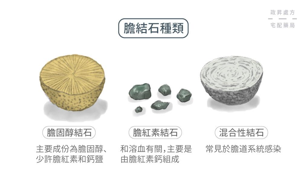 膽結石依成分可分成三種