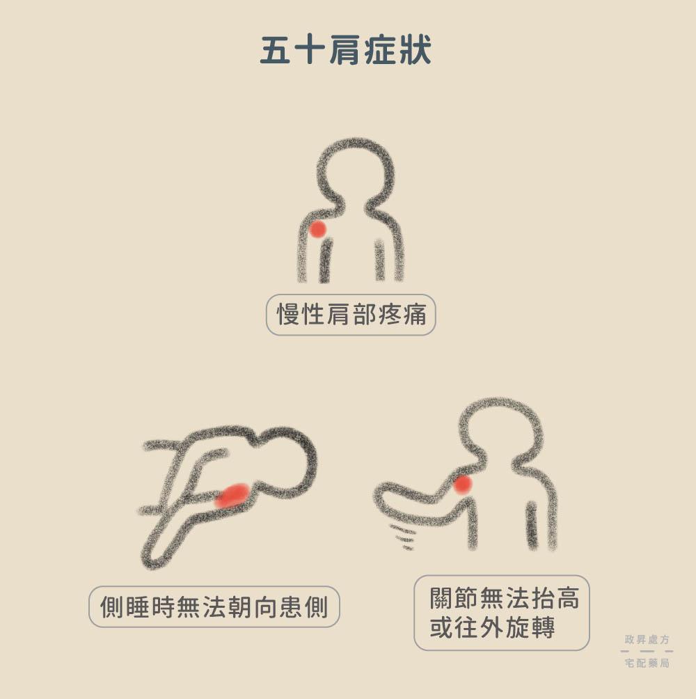 三種五十肩症狀
