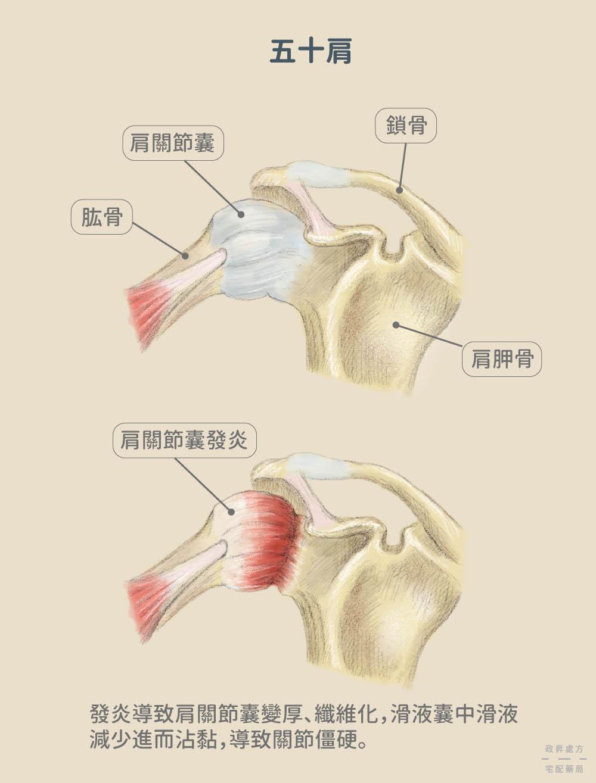 正常與發炎的肩關節骨骼