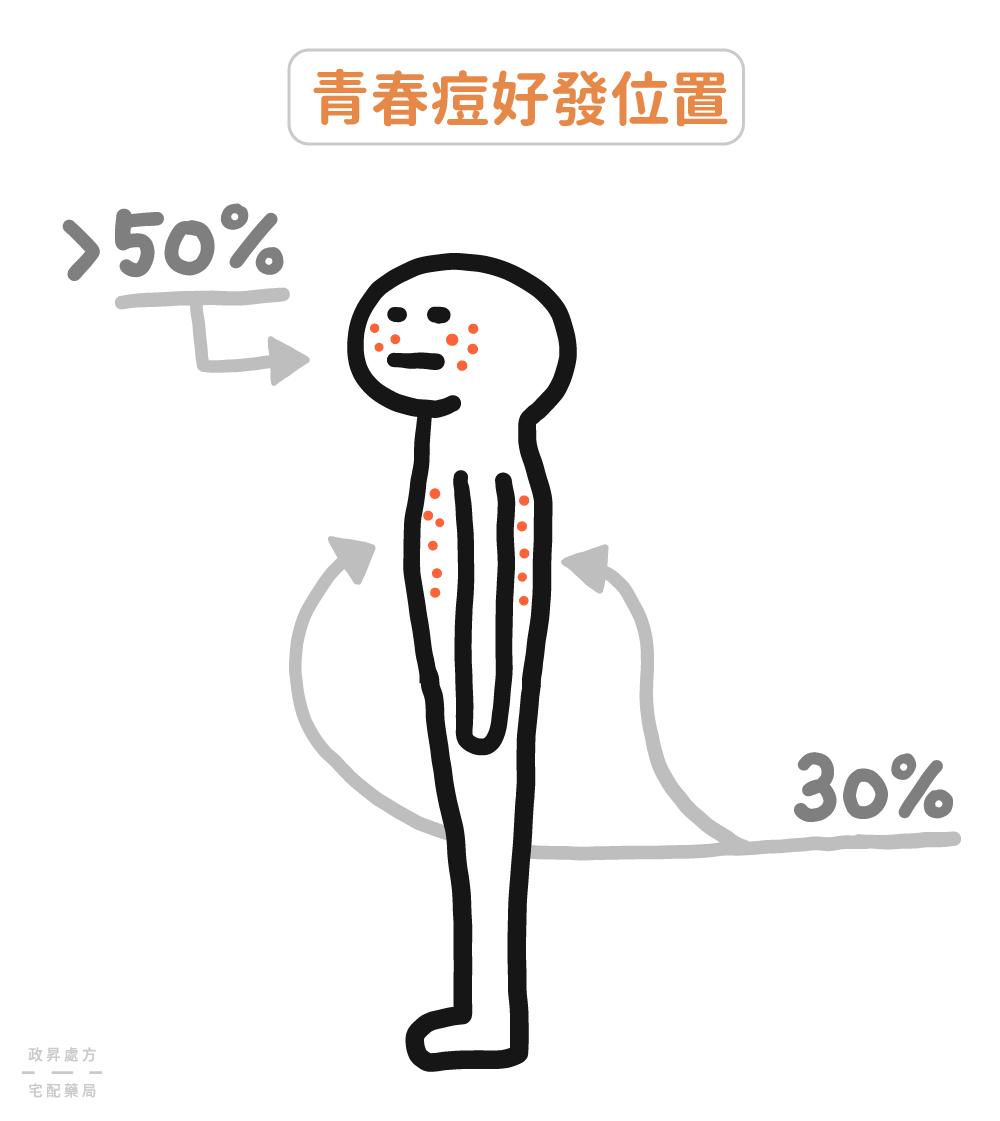 青春痘長在臉、前胸、後背的比例
