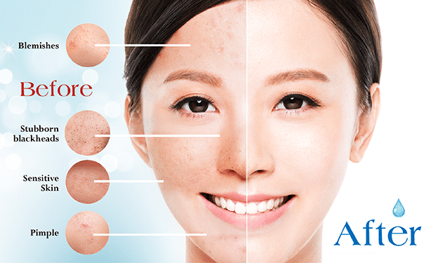 acne treatment singapore - before and after