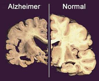 Alzheimer-spay