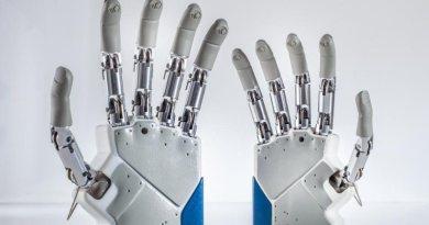 Impiantata mano bionica a una donna veneta. È la prima italiana