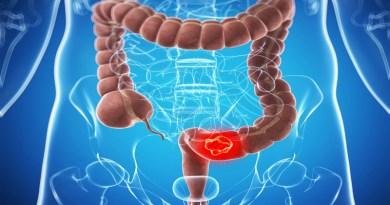 Tumore al colon, scoperta proteina da bersagliare
