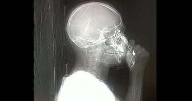 Napoli, donna risponde al cellulare durante una Tac neuroradiologica