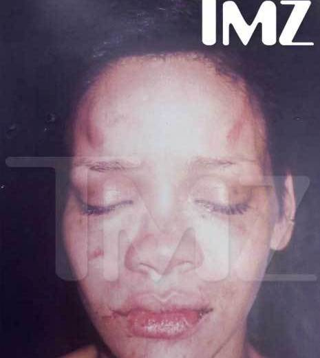 Rihanna Battered Photo