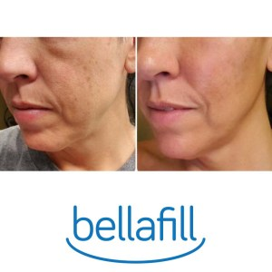 Bellafill Before & After