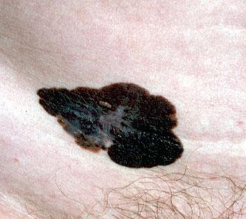 melanoma maligno a diffusione superficiale