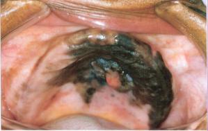 Melanoma primitivo delle mucose