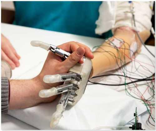 Bionic Arm -prima donna italiana ad avere un braccio bionico