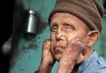 Waspadai Penyakit Lepra (hansen)