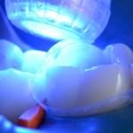 ¿Y la luz en la odontología?
