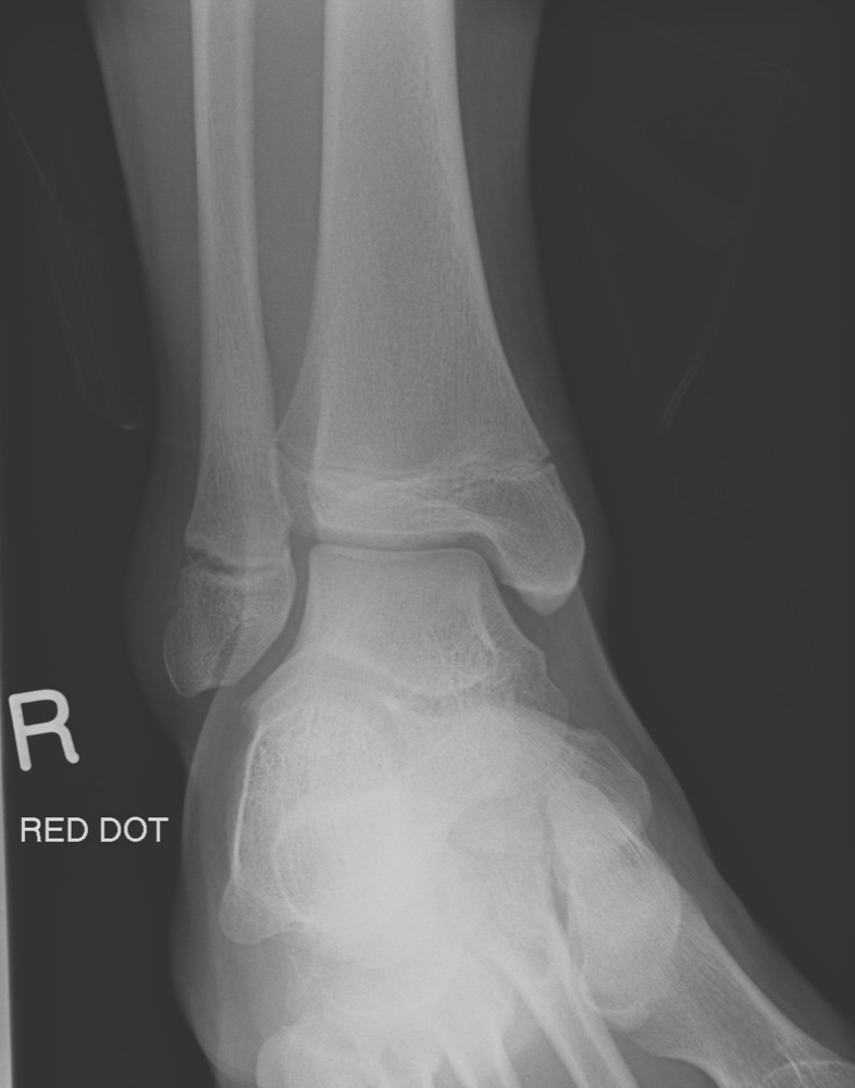 Ankle Growth Plate Fracture