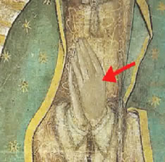 Abb. 21: Linke Hand