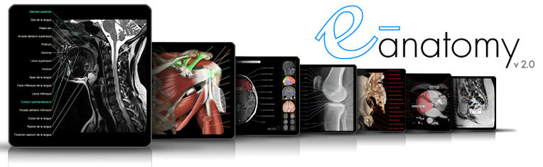 e-anatomy: interactive atlas of human anatomy