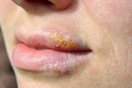 Machen Herpes Was Gegen