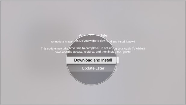 Click Download and Install