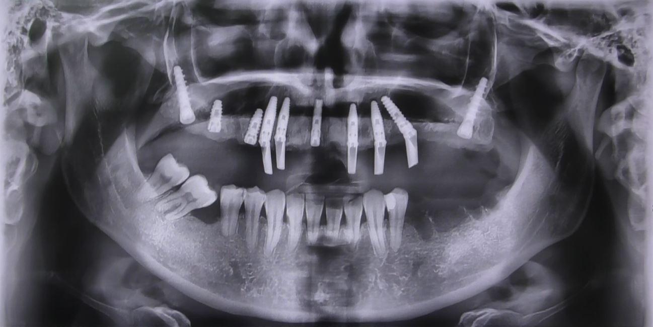 Impianti dentali a carico immediato senza gengiva finta