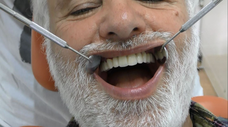implantologia senza falsa gengiva