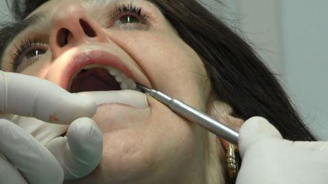 impianti dentali diverse soluzioni prezzi